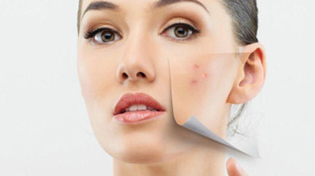 comment-venir-a-bout-de-son-acne-tardive-13_1959742
